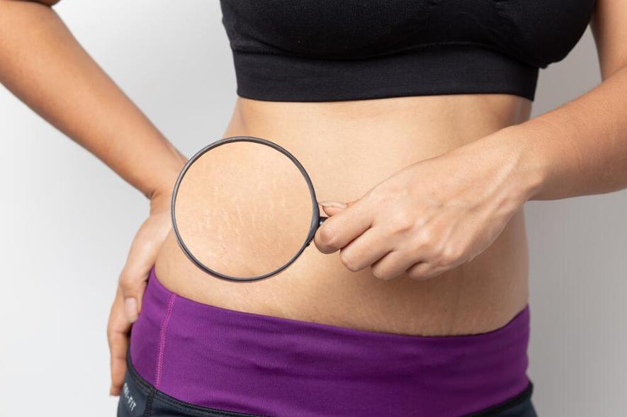 妊娠線は一度できるとなかなか消えない!?予防法とできた場合の対策