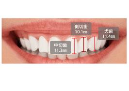歯や歯の生え方、歯茎に原因がある場合