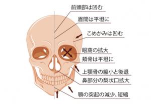 加齢による顔面骨の萎縮
