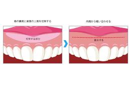 上唇粘膜切除術(LIP)