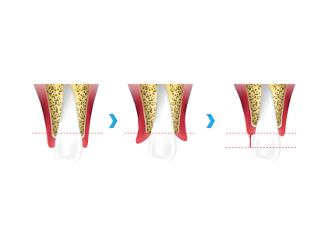 歯冠長延長術(CLP)