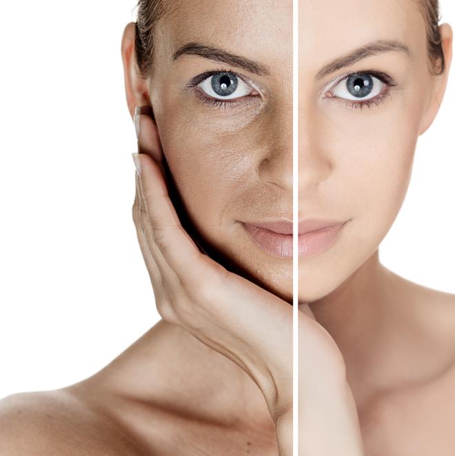 毛穴の黒ずみの原因とは?毛穴レス美肌のための毛穴講座