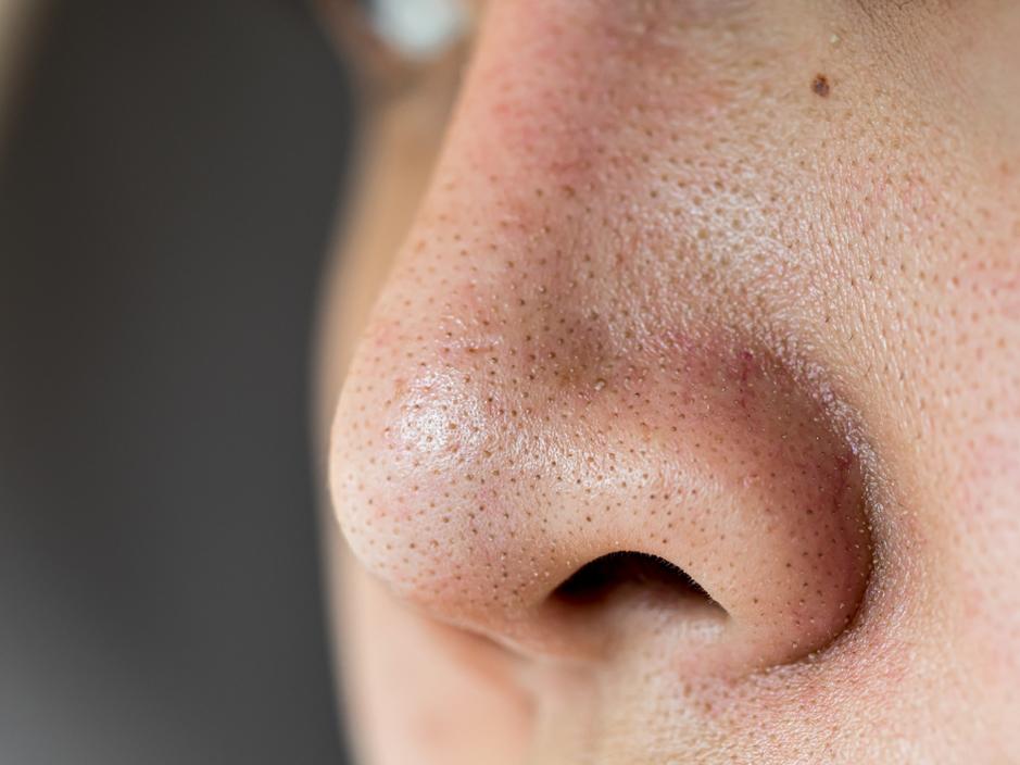 あなたの毛穴の黒ずみはどのタイプ?三つの症状別原因を解説