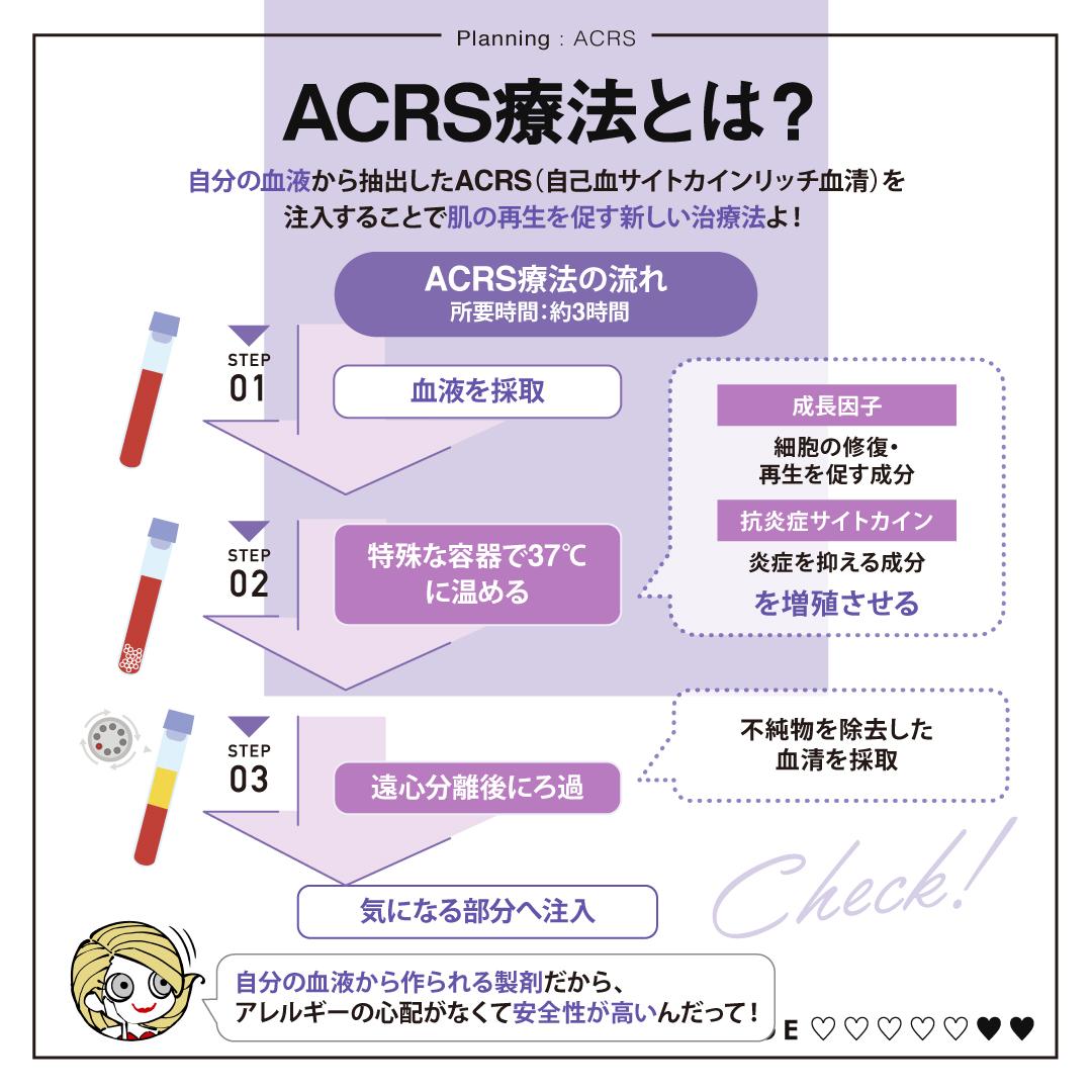 ACRS療法の仕組み
