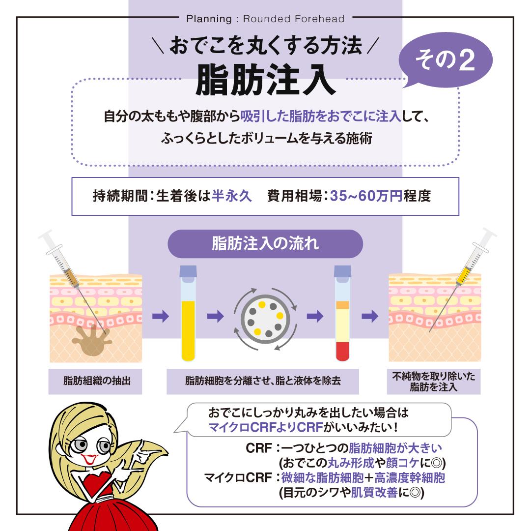 脂肪注入(コンデンスリッチファット注入)