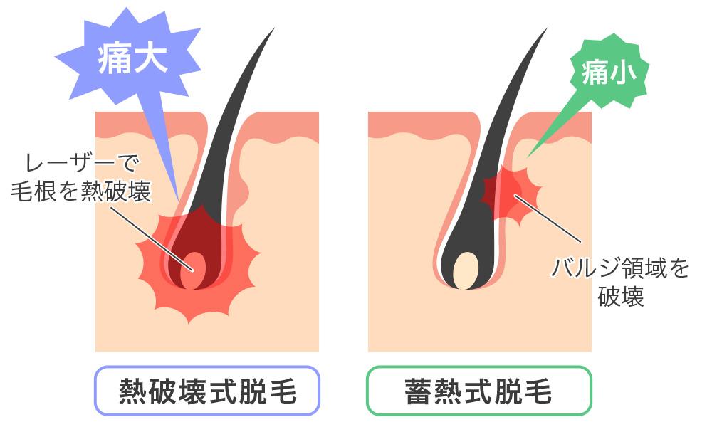 蓄熱式脱毛の仕組み