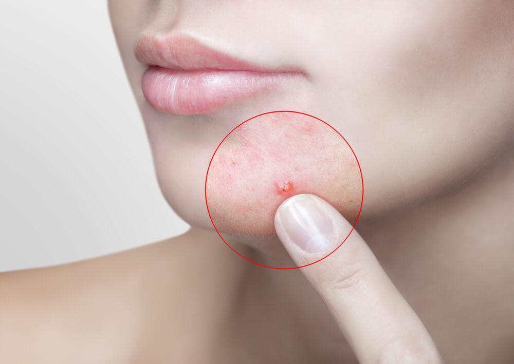 ニキビ注射が適応となる症状の例