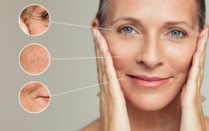 40代以上の肌悩み別にはどんな治療法がある?