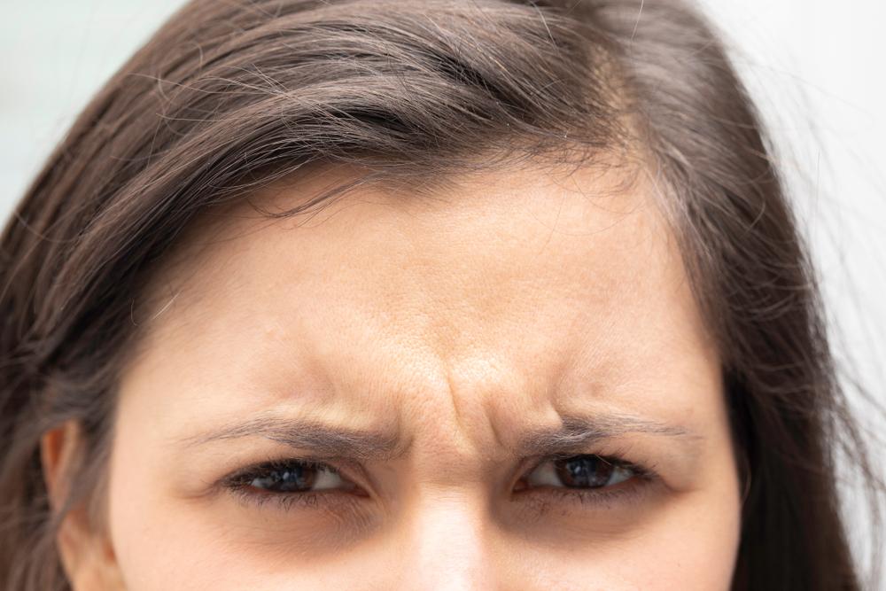 不機嫌顔の原因・眉間のシワにさようなら 美容治療で若々しい表情をキープ