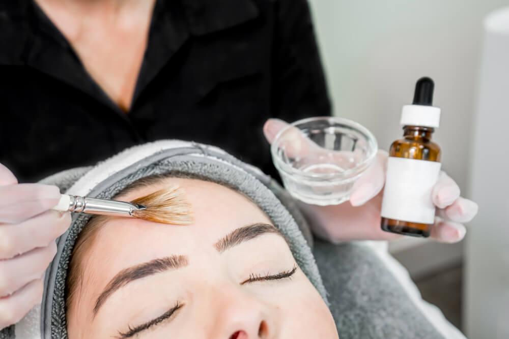 ニキビやニキビ跡に効果が期待できる皮膚科のピーリング剤