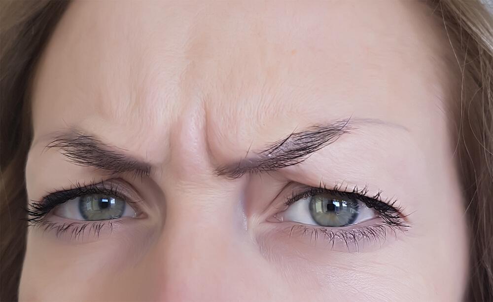 眉間のシワ5タイプ 原因は全て筋肉にあり
